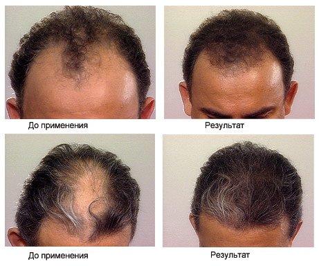 Средство для роста волос Хэа