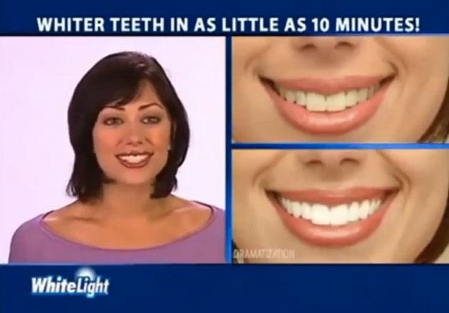 Отбеливание зубов системой smartbleach